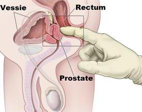 Dessin expliquant comment masser la prostate